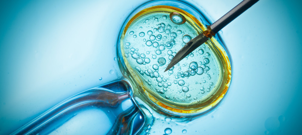A single embryo, a multiple pregnancy: IVF mystery solved