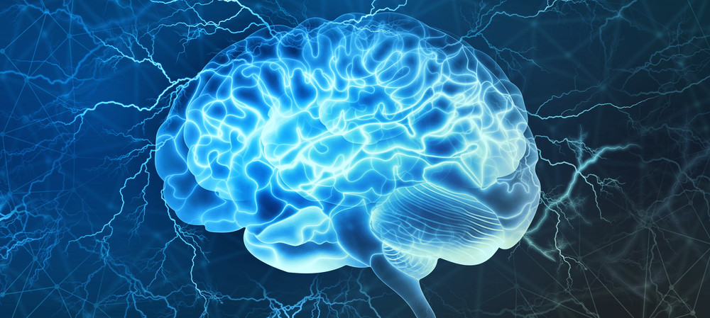 Brain-stimulation implant could treat epilepsy patients