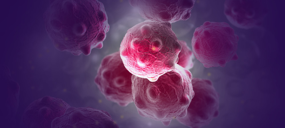 Three new methods for early cancer detection