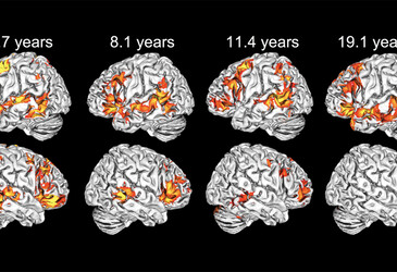 Children use both brain hemispheres to understand language