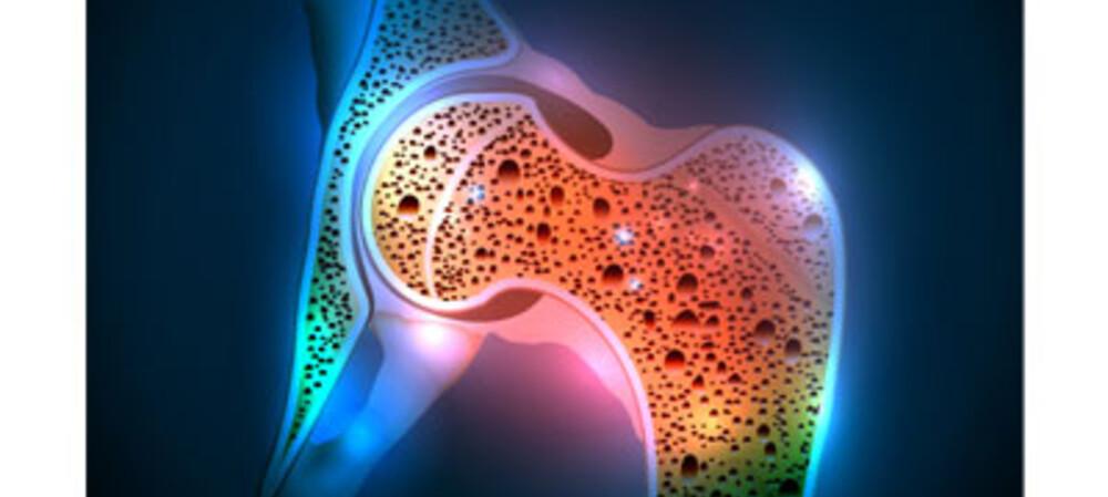 Australians urged to check bone density